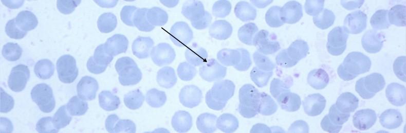 13-04-P2_Artefakte_Plasmodium